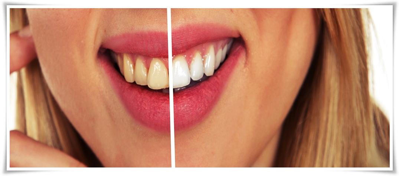 Mudah Di Dapat 5 Bahan Ini Dapat Membuat Gigi Putih Dan Bersih