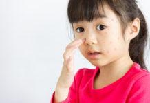 Alergi Pada Anak