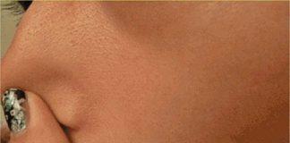 Membuat Pori Pori Wajah Mengecil